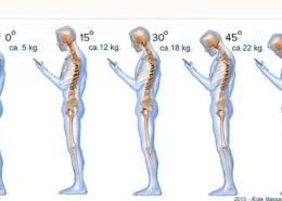 Smartphones giver ondt i ryggen